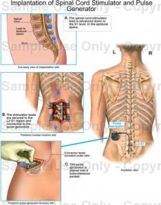 spinal cord stimulator