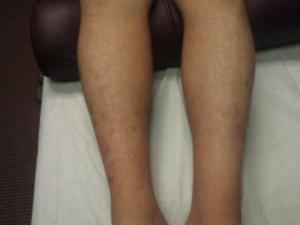 Michael Harris - Legs after